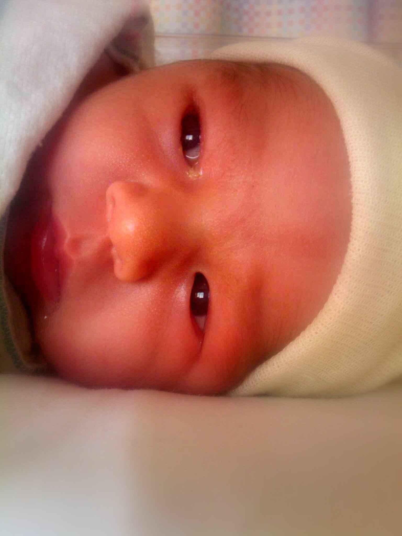 Linus - eyes - soft